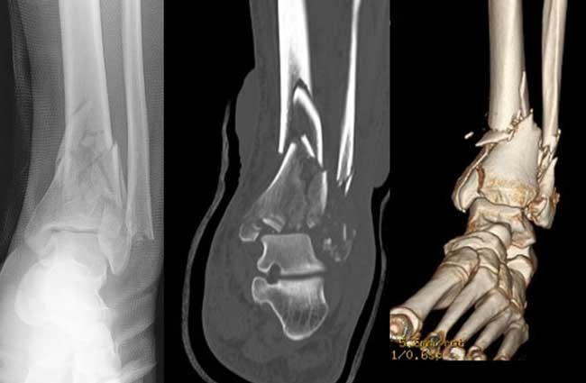 X-ray and CT scan of a pilon fracture