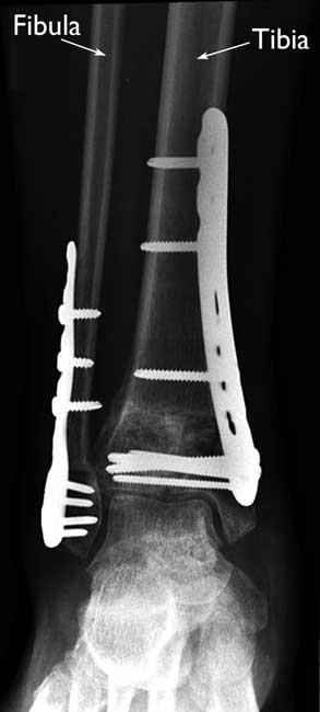 Internal fixation of a pilon fracture