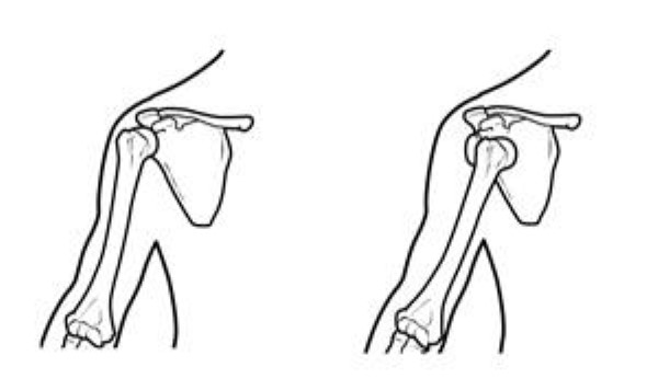 Illustration of normal shoulder stability and shoulder dislocation