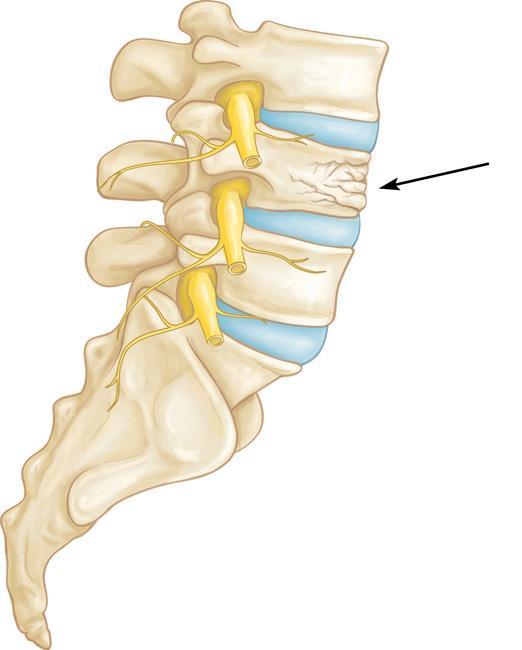 A vertebral compression fracture