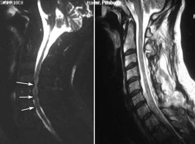 MRI scans of spinal cord compression and laminoplasty