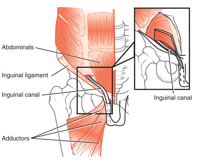 Sports hernias often occur where the abdominals and adductors attach at the pubic bone.