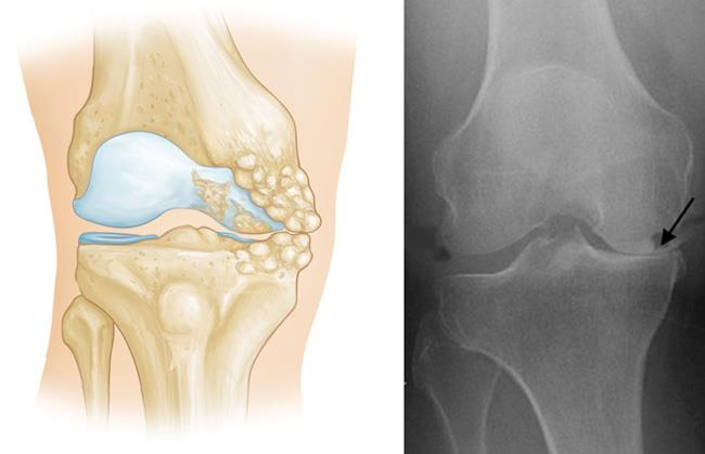 Unicompartmental Knee Replacement - OrthoInfo - AAOS