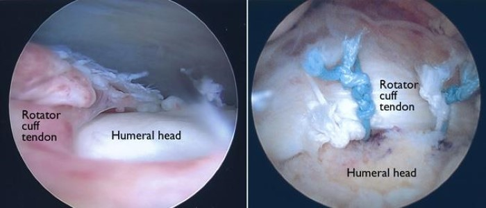 arthroscopic photos of a rotator cuff tear and surgical repair