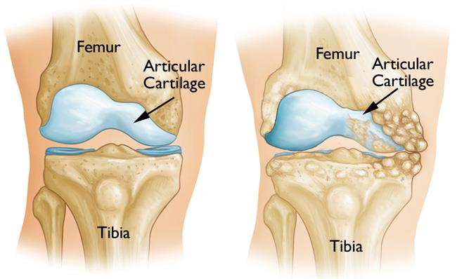 Osteotomy Of The Knee Orthoinfo Aaos