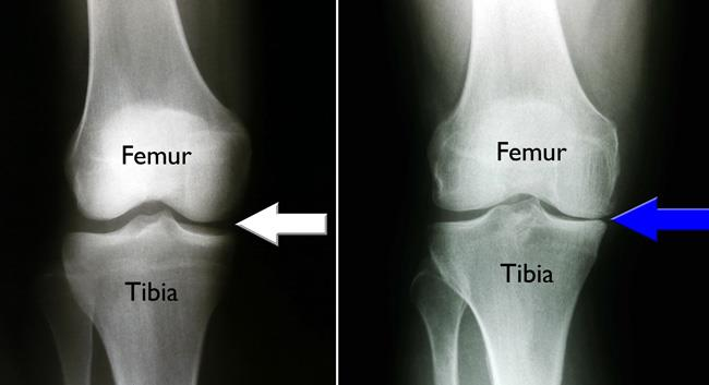 x-rays show normal joint space in knee and osteoarthritis on one side of knee