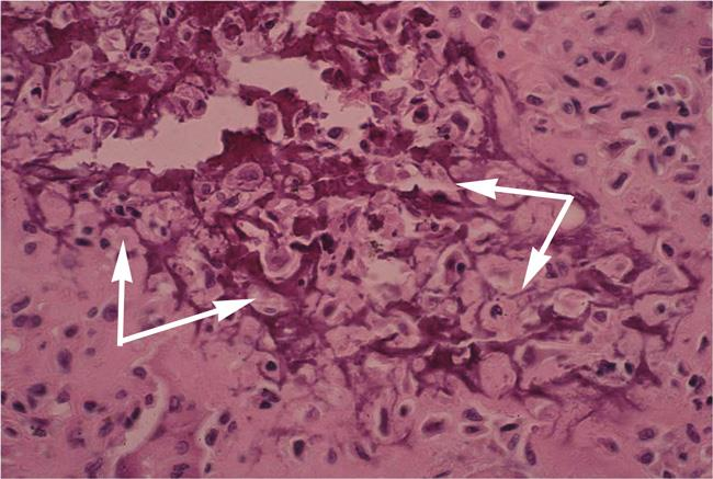 chondroblastoma pathology slide