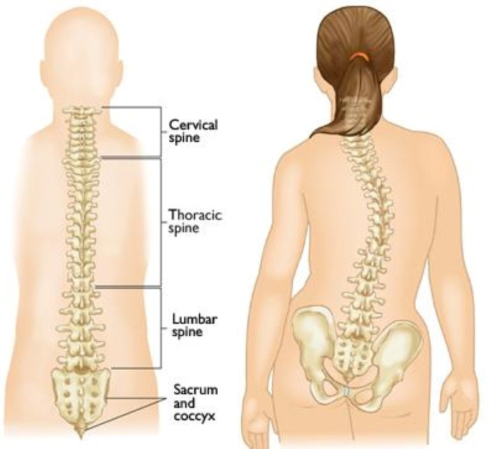 normal spine and scoliosis curves