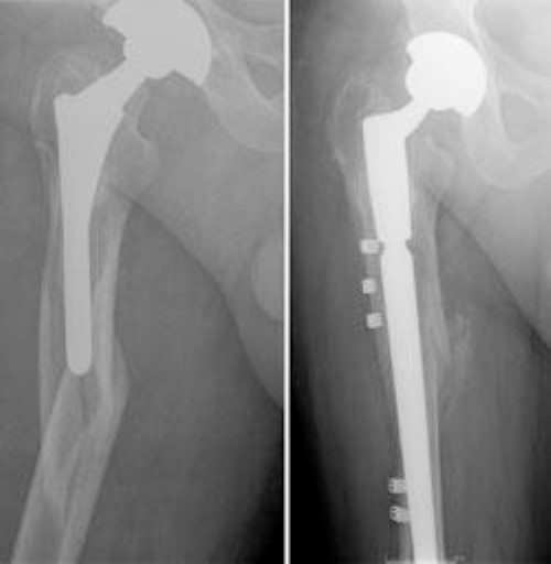 x-rays of loose implant and joint revision