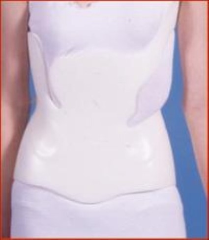 Nonsurgical Treatment Options for Scoliosis - OrthoInfo - AAOS