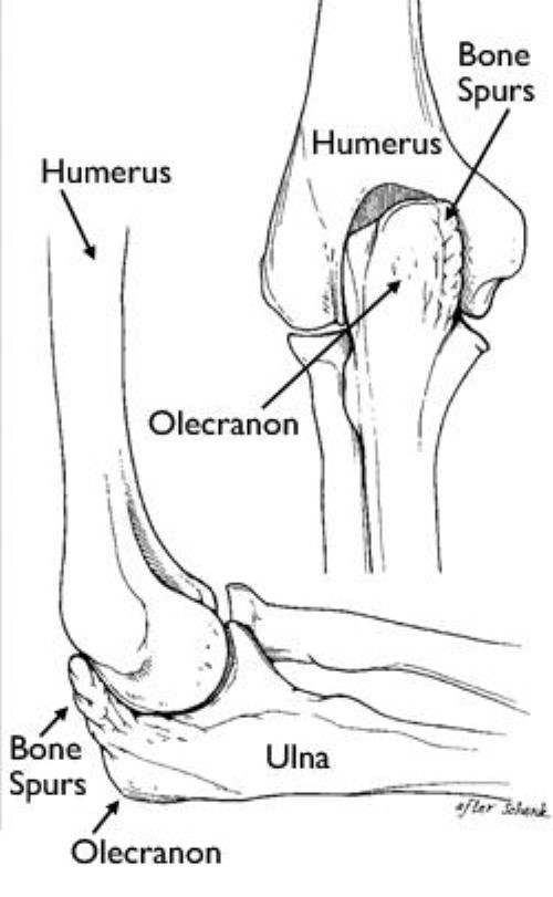 Elbow Injuries In The Throwing Athlete Orthoinfo Aaos