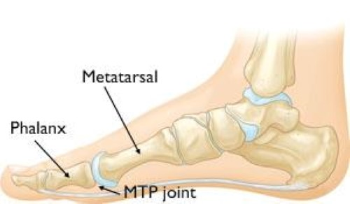 MTP joint anatomy