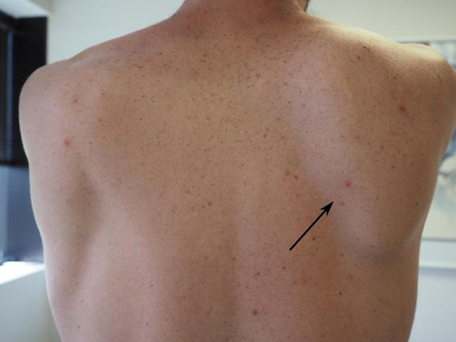 Scapular Shoulder Blade Problems And Disorders Orthoinfo Aaos