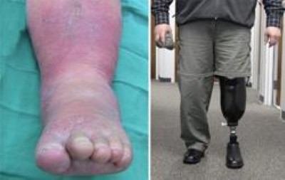 Diabetic Charcot Foot Orthoinfo Aaos