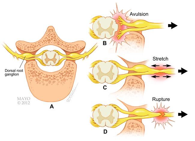 Cross-section views of the major types of brachial plexus stretch injuries