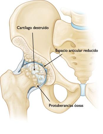 Reemplazo total de cadera (Total Hip Replacement) - OrthoInfo - AAOS
