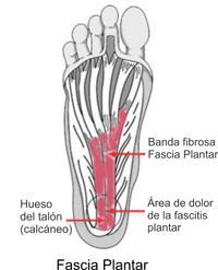 Fascitis Plantar Y Protuberancias óseas Plantar Fasciitis