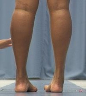 calf and ankle muscle atrophy