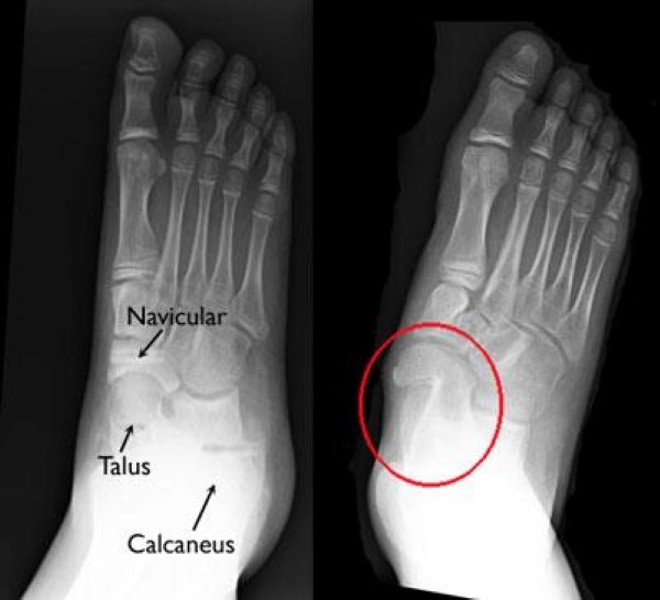 x-ray of a tarsal coalition