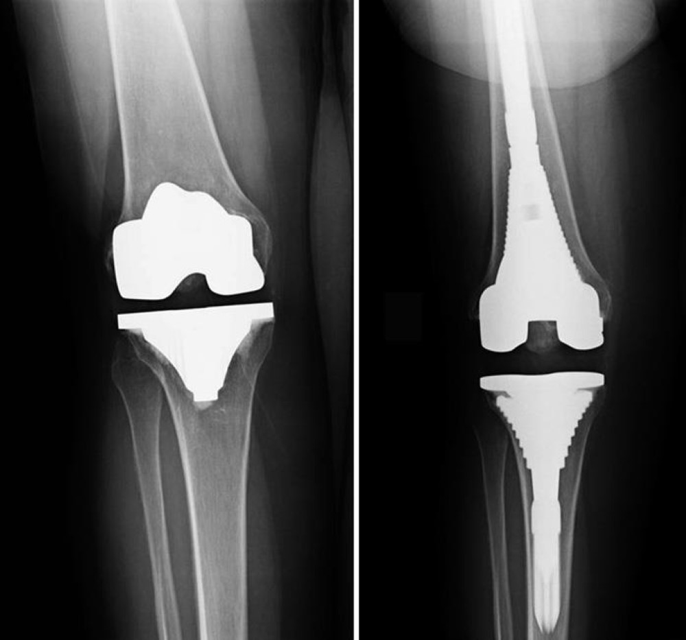 x-ray of loose knee implant and revision components