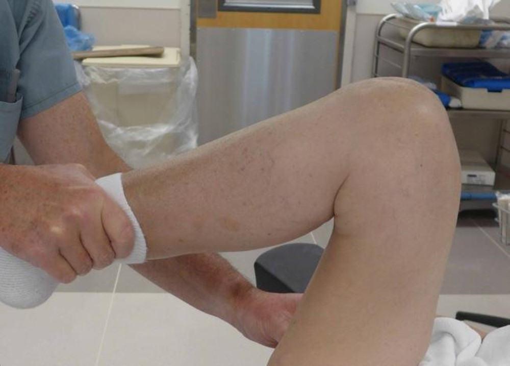 break down scar tissue around knee implant
