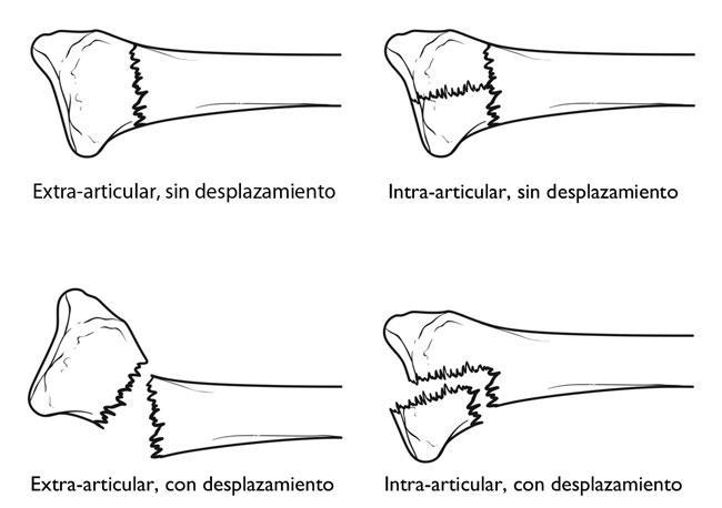 Fracturas distales del radio (muñeca quebrada) (Distal Radius ...