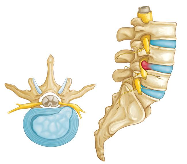 Hernia de disco en la columna lumbar (Herniated Disk in the Lower ...