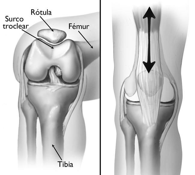 El Síndrome De Dolor Patelofemoral Patellofemoral Pain Syndrome Orthoinfo Aaos