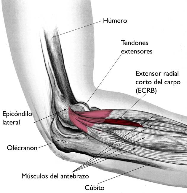 Codo de tenista (epicondilitis lateral) (Tennis Elbow (Lateral ...