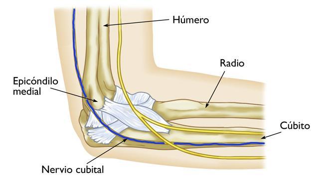 Atrapamiento del nervio cubital en el codo (síndrome del túnel ...