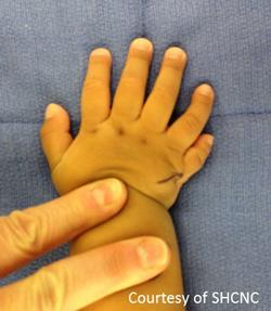 polydactyly